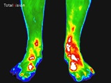 voeten-infrarood-thermografie
