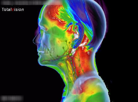 medische-thermografie-screening