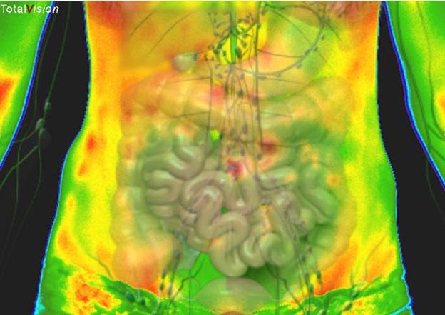 medische thermografie-infraroodscreening